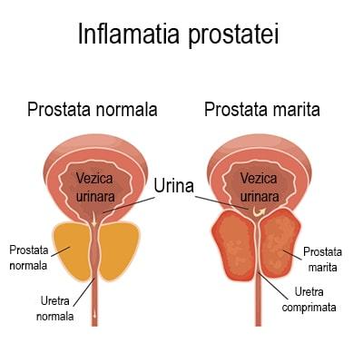 calcifiere prostata tratament naturist